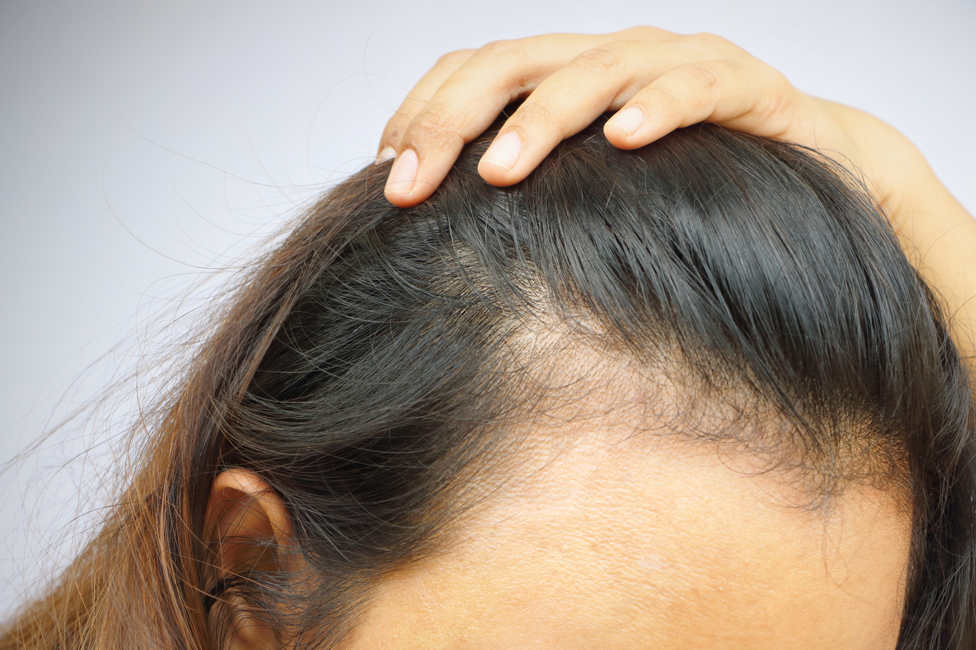 Vitamin D and Hair Growth: Here's How the Two Go Hand-In-Hand